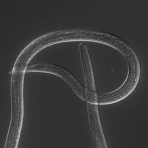 filarial nematode closeup
