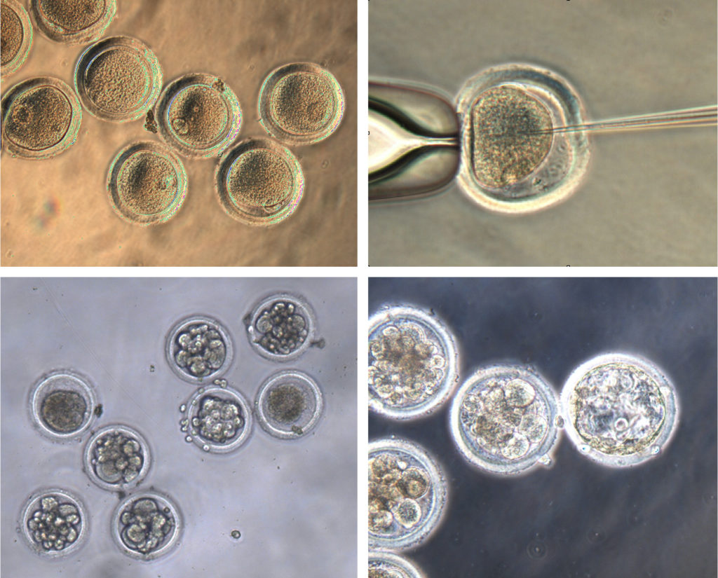 Egg cells harvested from Mauritian cynomolgus macaques (top left) were fertilized (top right) and injected with CRISPR gene editing materials to insert a genetic mutation that cured two men of HIV in the last decade